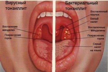 Член горло уши больно