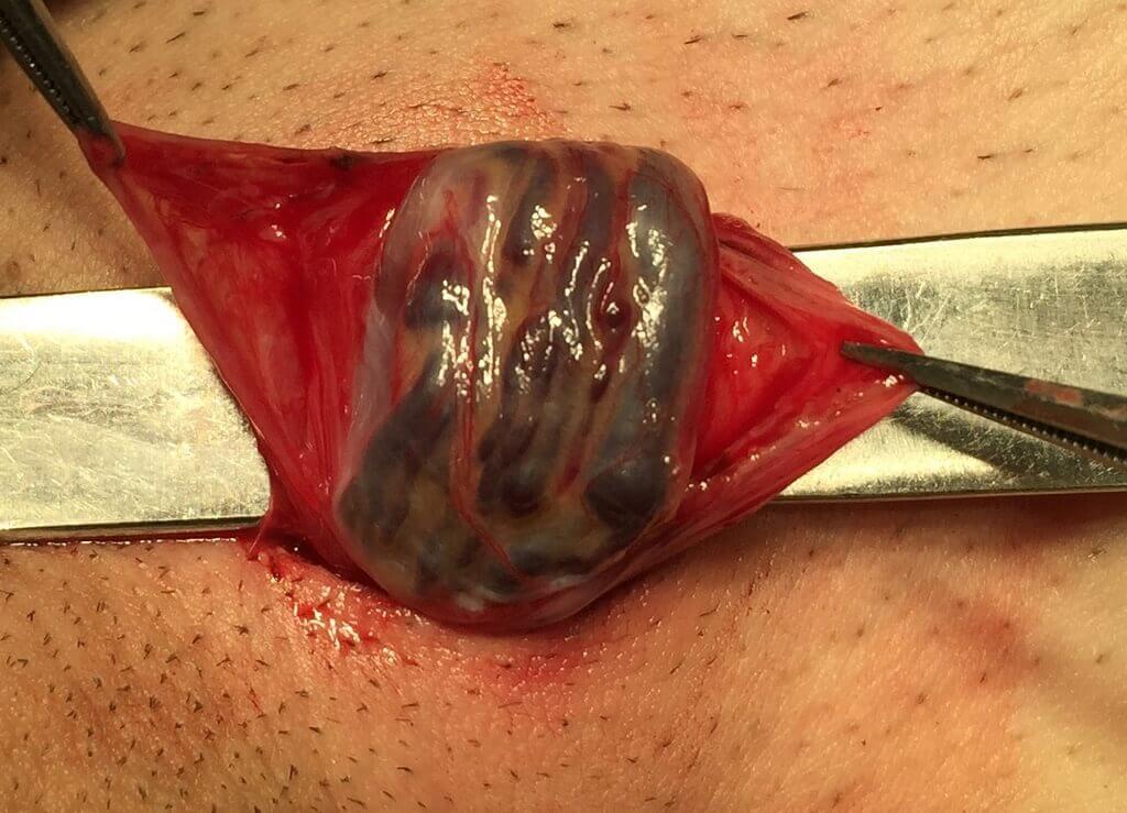 Варикоцеле у мужчин: симптомы, причины возникновения, лечение ...