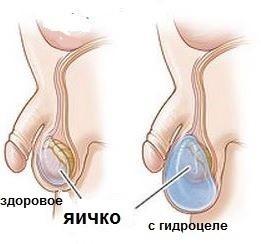 Почему после секса жесткие яйца