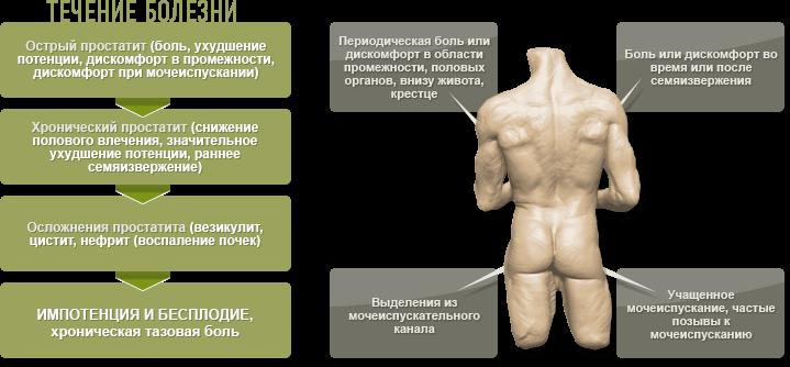 народное лечение простатита полынью
