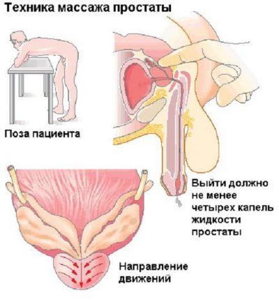 Как дома сделать массаж простаты. Лечение простатита у мужчин с ...